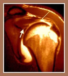 hombro supraspinoso clavícula OSTEON Alaquàs Centro Fisioterapia Carlos Lopez cubas