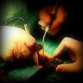 estenosis cirugia lumbar