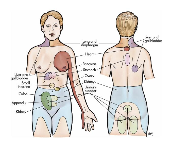 dolor visceral osteon